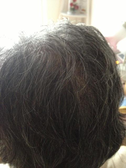 77歳でも髪が増えてきた~♪ そして・・・