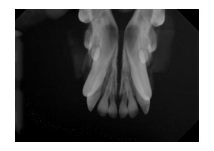 乳歯の残存→残根→XRay(歯科)