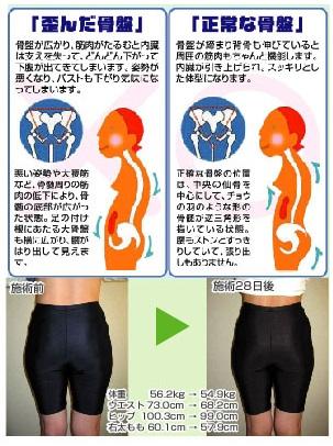 骨盤矯正とスタイルアップダイエット