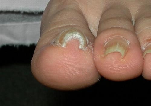 巻爪と爪水虫の関係 2