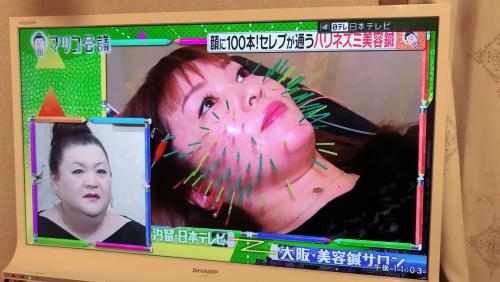 世田谷区千歳烏山で美容鍼、ハリネズミ鍼はオリンピア鍼灸整骨院