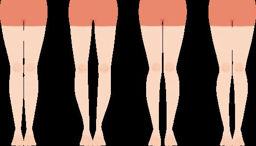 O脚矯正、X脚矯正、美脚調整は千歳烏山オリンピア鍼灸整骨院!