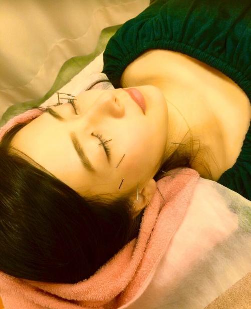 世田谷区千歳烏山で美容鍼・美容鍼灸はオリンピア鍼灸整骨院