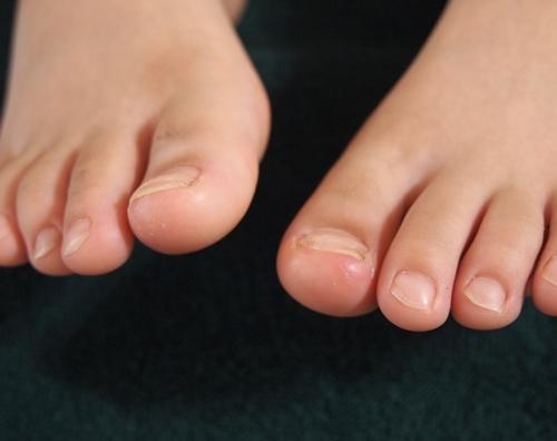 子供の巻爪