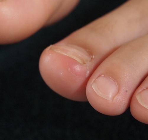 子供の巻爪 その2